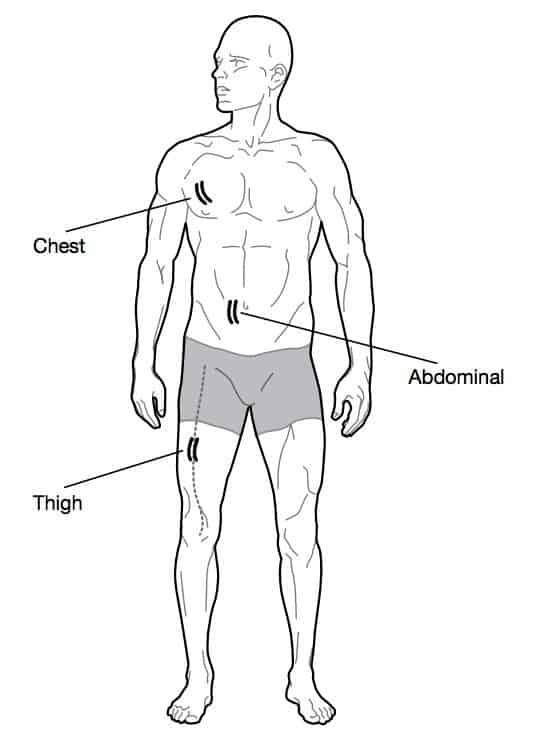מדידת אחוז שומן בגוף - נקודות מדידה בגוף